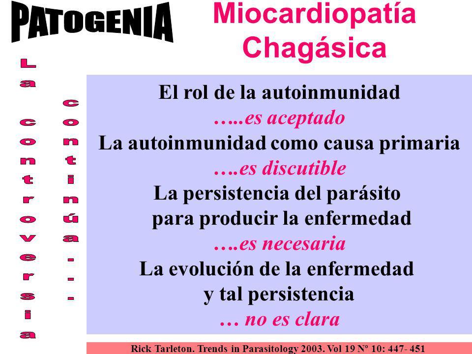 Miocardiopatía Chagásica