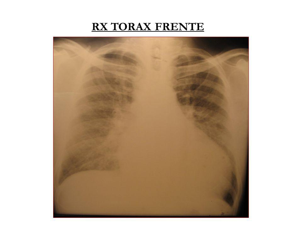 RX TORAX FRENTE