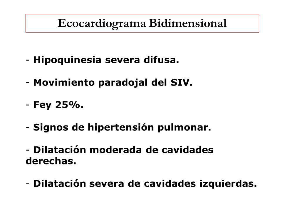 Ecocardiograma Bidimensional