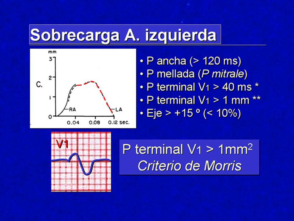 Como es la SAI Expliquemos de nuevo los componentes de la onda P, uno primero de la AD y el final de la AI.