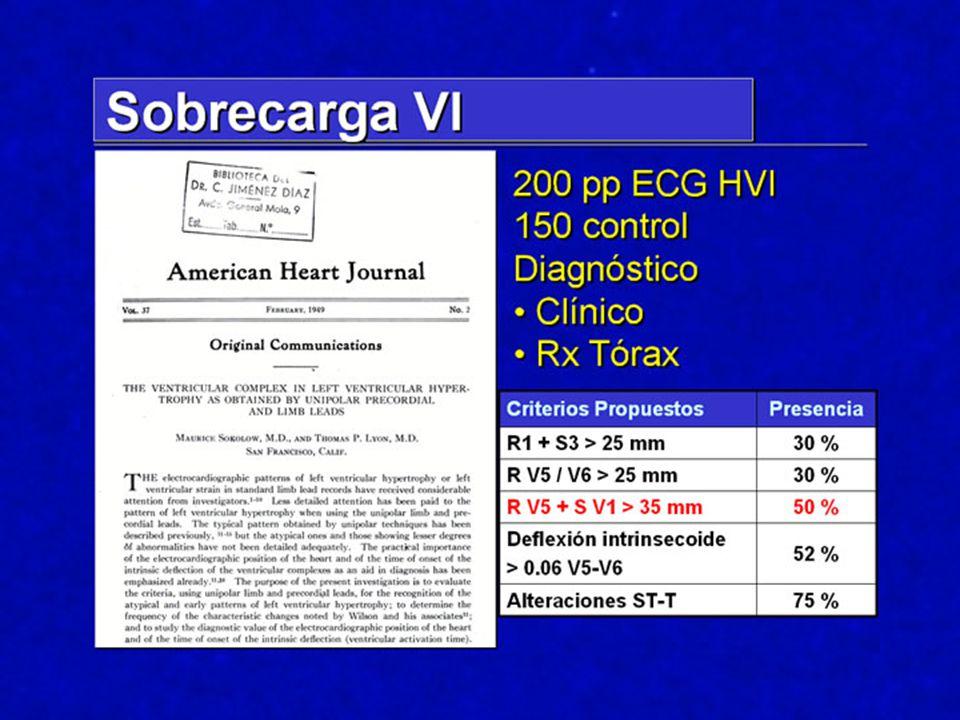 Los primeros trabajos encaminados a identificar critrerios de HVI fueron realizados desde el punto de vista clínico, y un trabajo clásico es el de Sokolow y Lyon, quienes, en 200 pp con criterios previos de posible sobrecarga de VI, idnetificaron una serie de patrones en ECG que eran utiles en la identificación de la HVI.