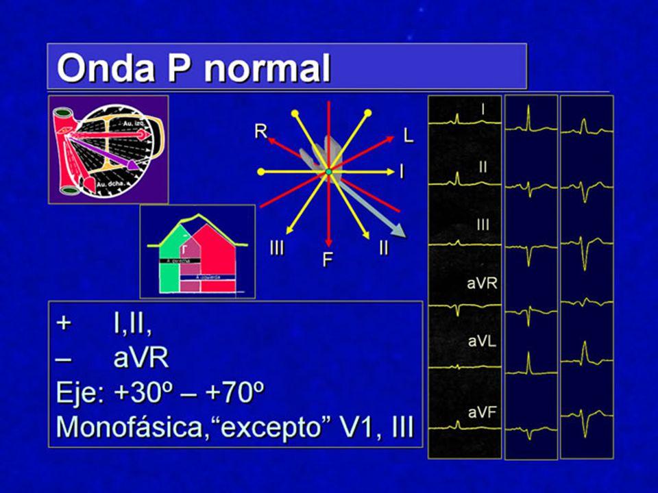 La activación auricular comienza en la región del nodo sinusal, y se extiende hacia ambas auricular, en general, en un vector dirigido hacia: Delante, Abajo, Izquierda.