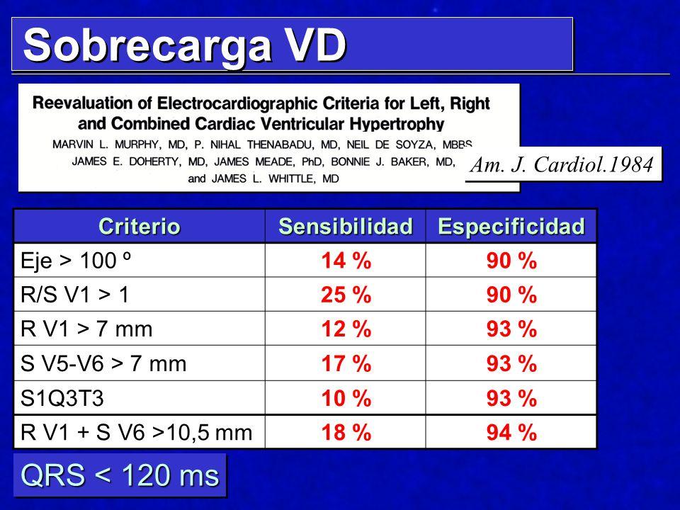 Sobrecarga VD QRS < 120 ms Am. J. Cardiol.1984 Criterio