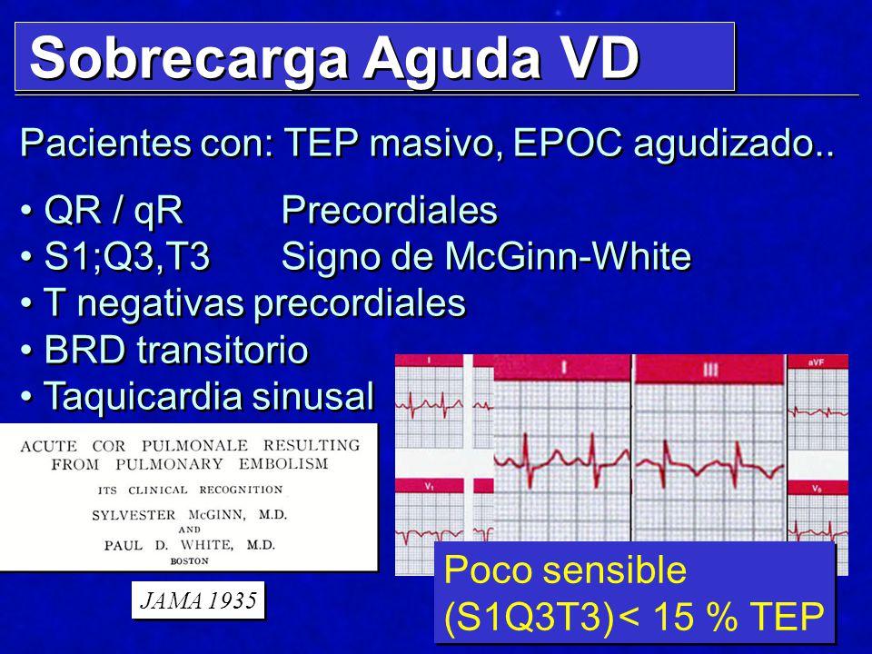 Sobrecarga Aguda VD Pacientes con: TEP masivo, EPOC agudizado..