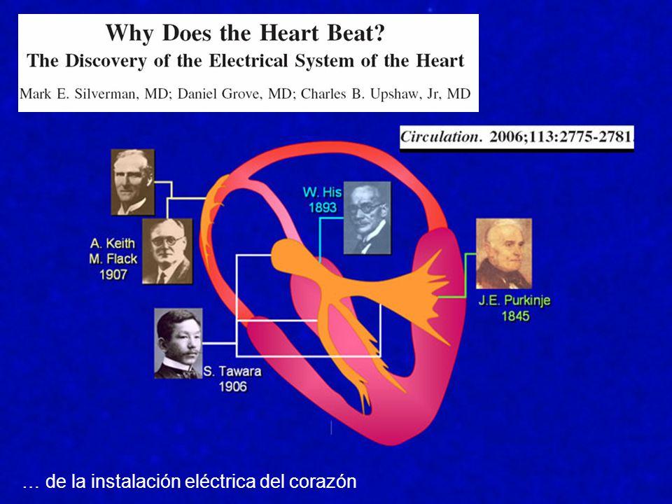 … de la instalación eléctrica del corazón