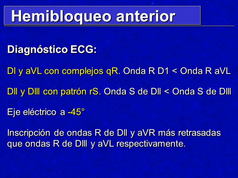 Hemibloqueo anterior Diagnóstico ECG: