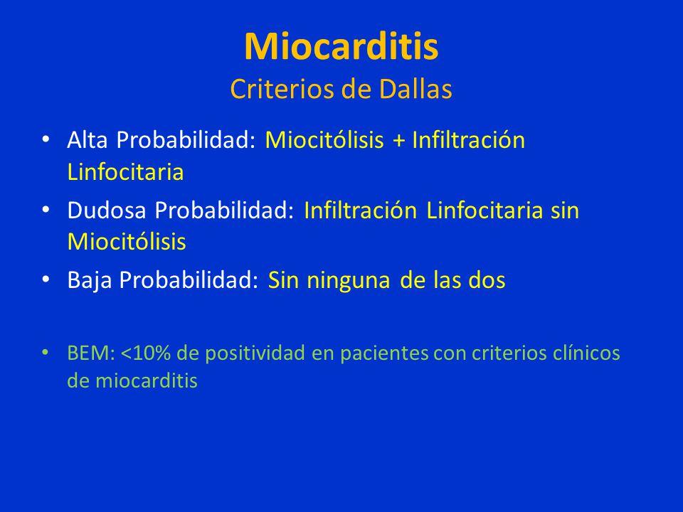 Miocarditis Criterios de Dallas