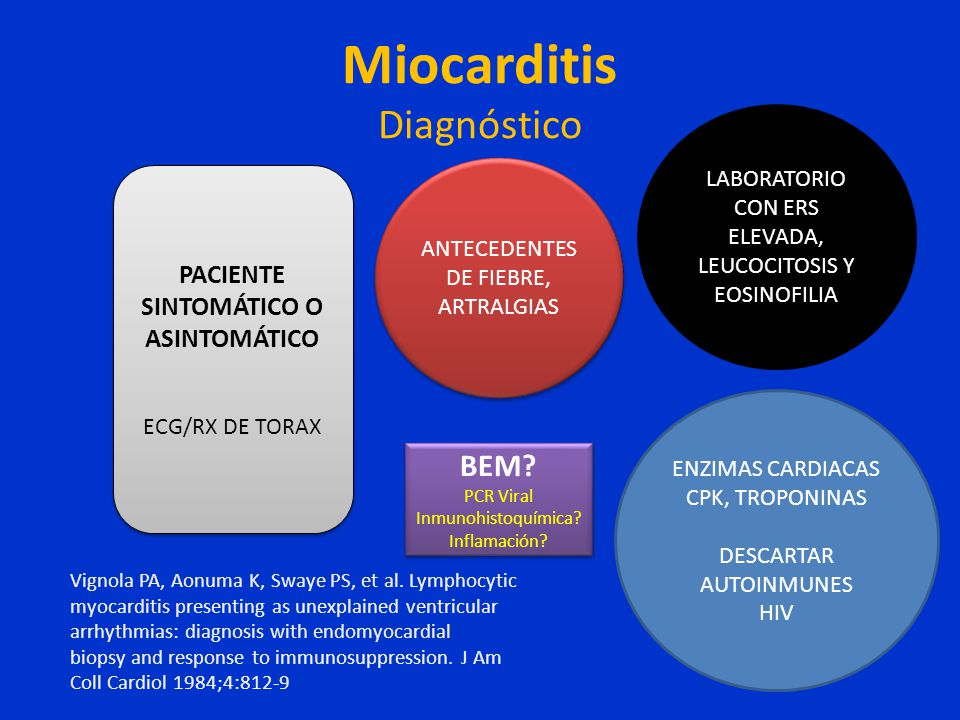 Miocarditis Diagnóstico