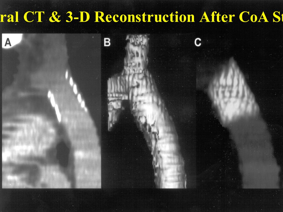 Spiral CT & 3-D Reconstruction After CoA Stent