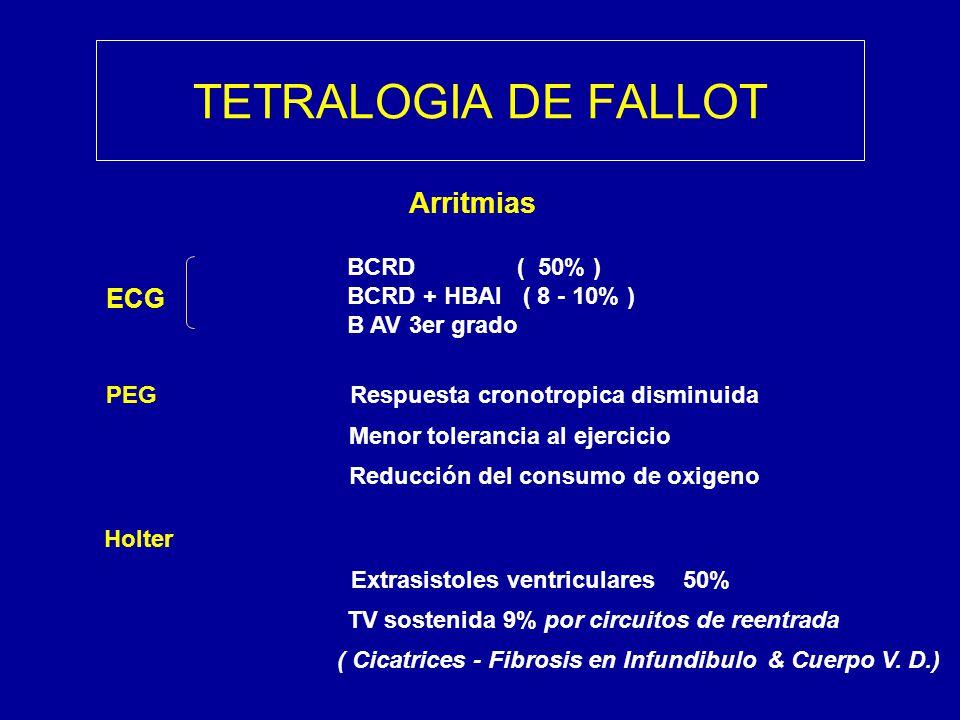 TETRALOGIA DE FALLOT Arritmias ECG BCRD ( 50% )