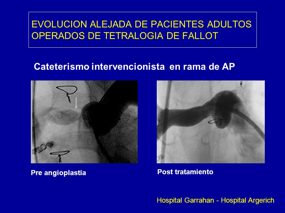 Cateterismo intervencionista en rama de AP