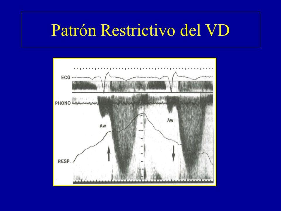 Patrón Restrictivo del VD