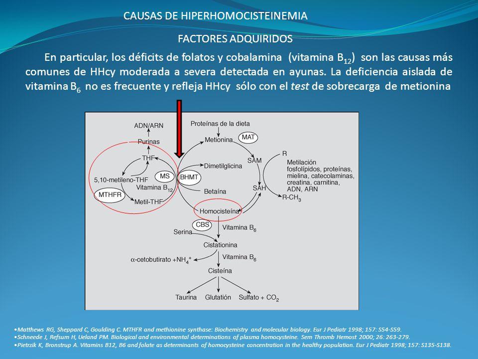 CAUSAS DE HIPERHOMOCISTEINEMIA