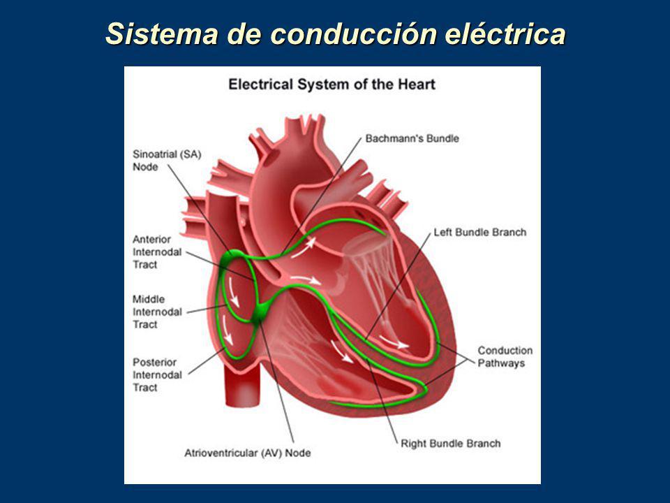 Sistema de conducción eléctrica