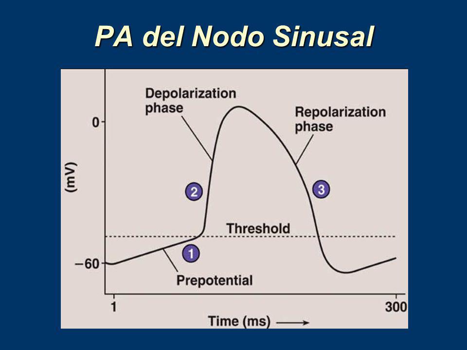 PA del Nodo Sinusal