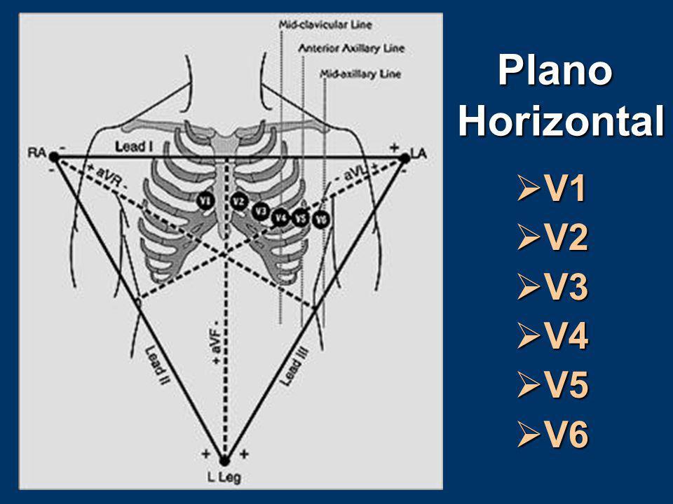 Plano Horizontal V1 V2 V3 V4 V5 V6