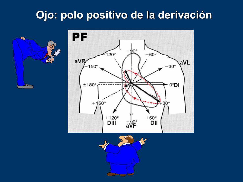 Ojo: polo positivo de la derivación