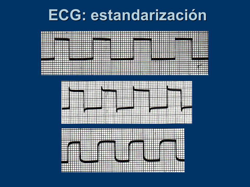ECG: estandarización