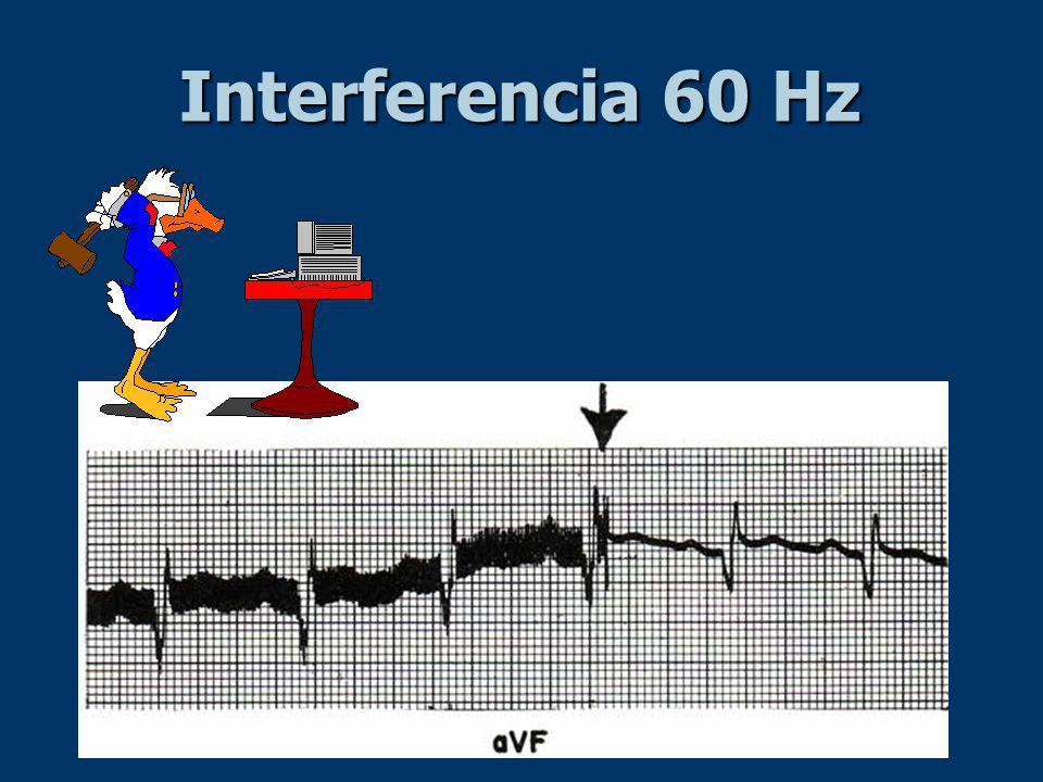 Interferencia 60 Hz