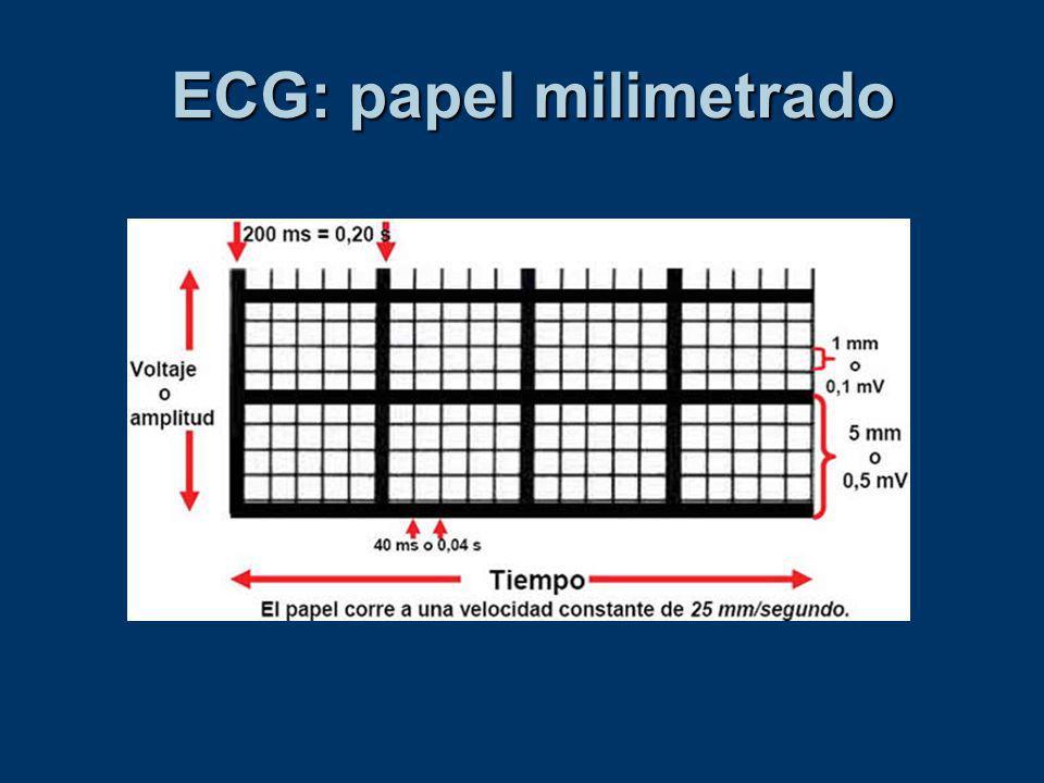 ECG: papel milimetrado