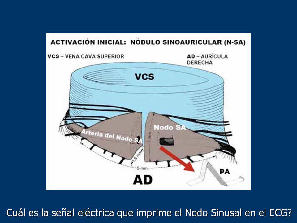 Cuál es la señal eléctrica que imprime el Nodo Sinusal en el ECG