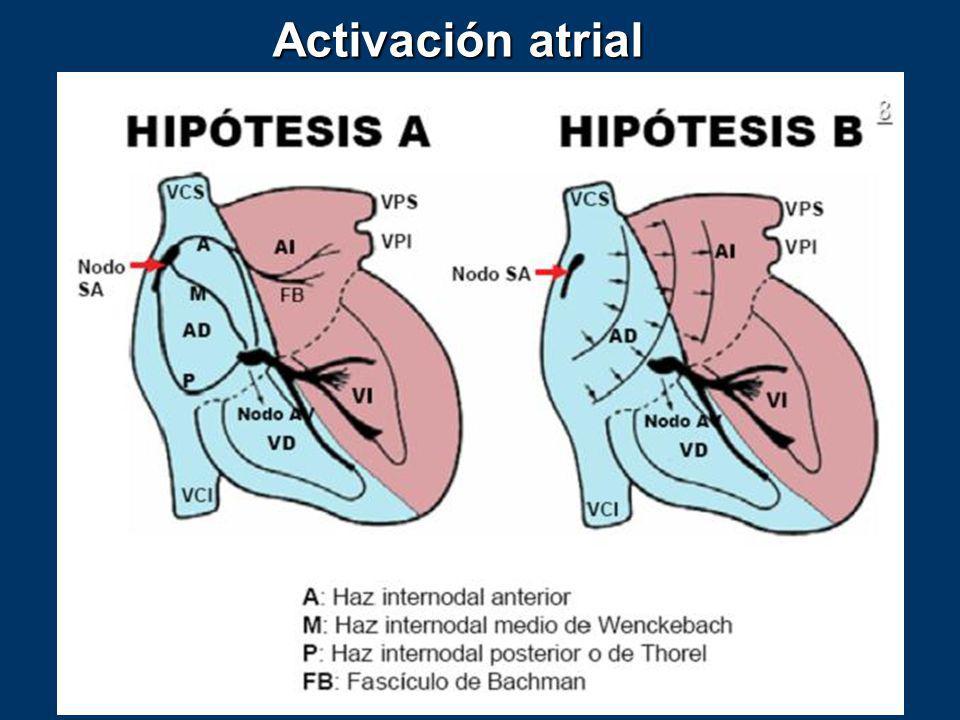 Activación atrial