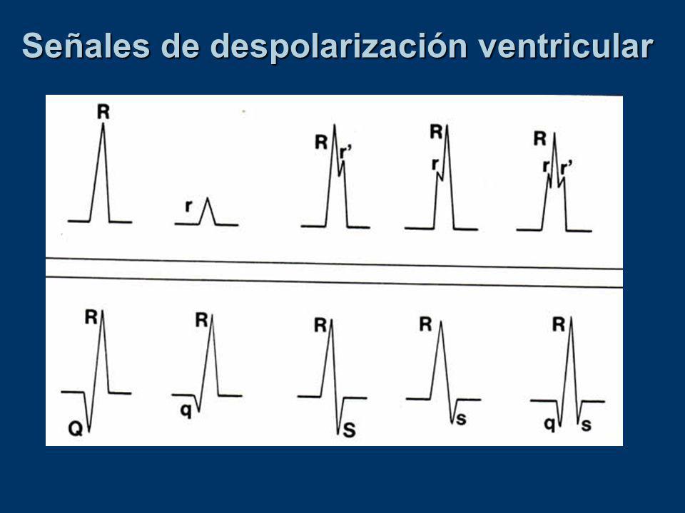 Señales de despolarización ventricular