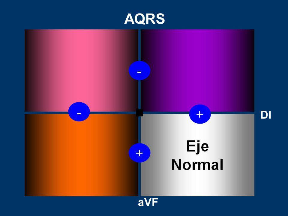 AQRS DI aVF