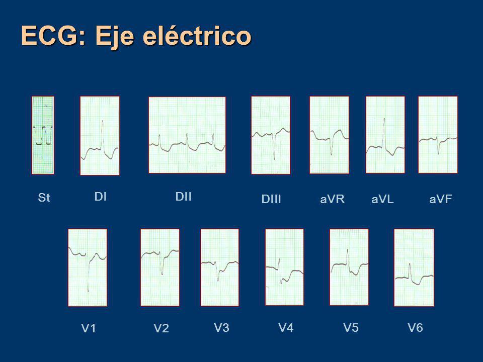 ECG: Eje eléctrico St DI DII DIII aVR aVL aVF V1 V2 V3 V4 V5 V6