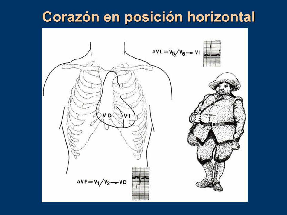Corazón en posición horizontal