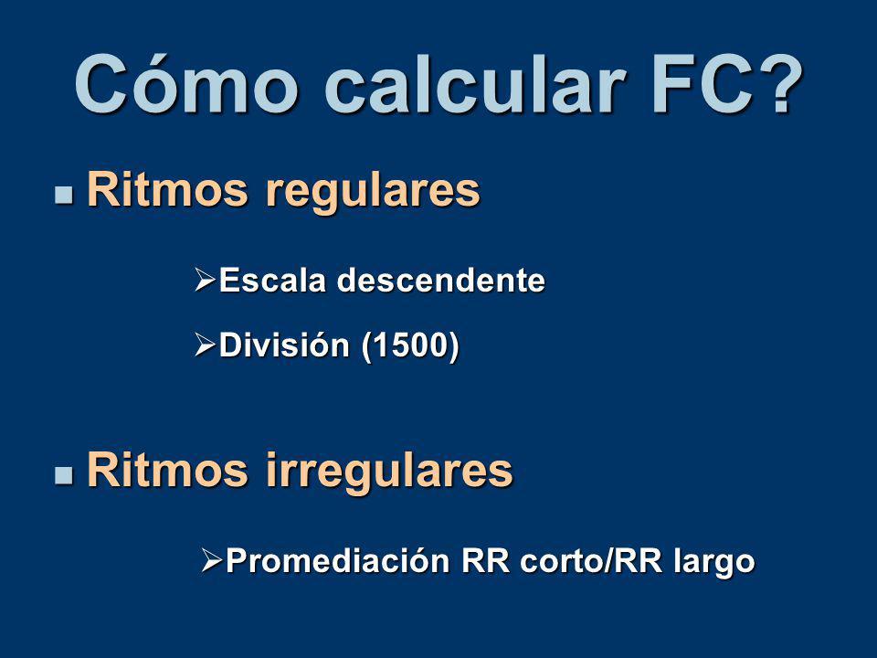 Cómo calcular FC Ritmos regulares Ritmos irregulares