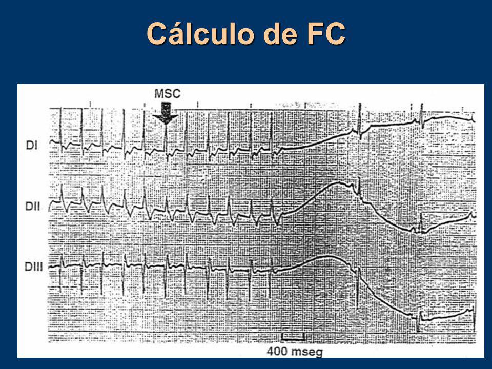 Cálculo de FC