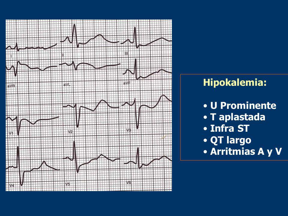 Hipokalemia: U Prominente T aplastada Infra ST QT largo Arritmias A y V