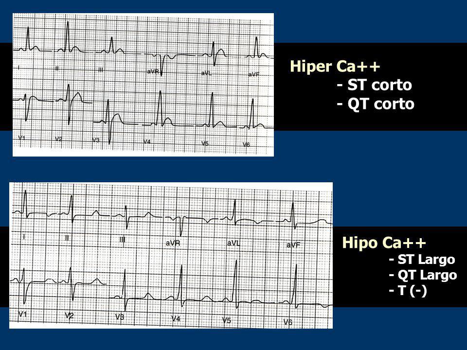 Hiper Ca++ - ST corto - QT corto Hipo Ca++ - ST Largo - QT Largo