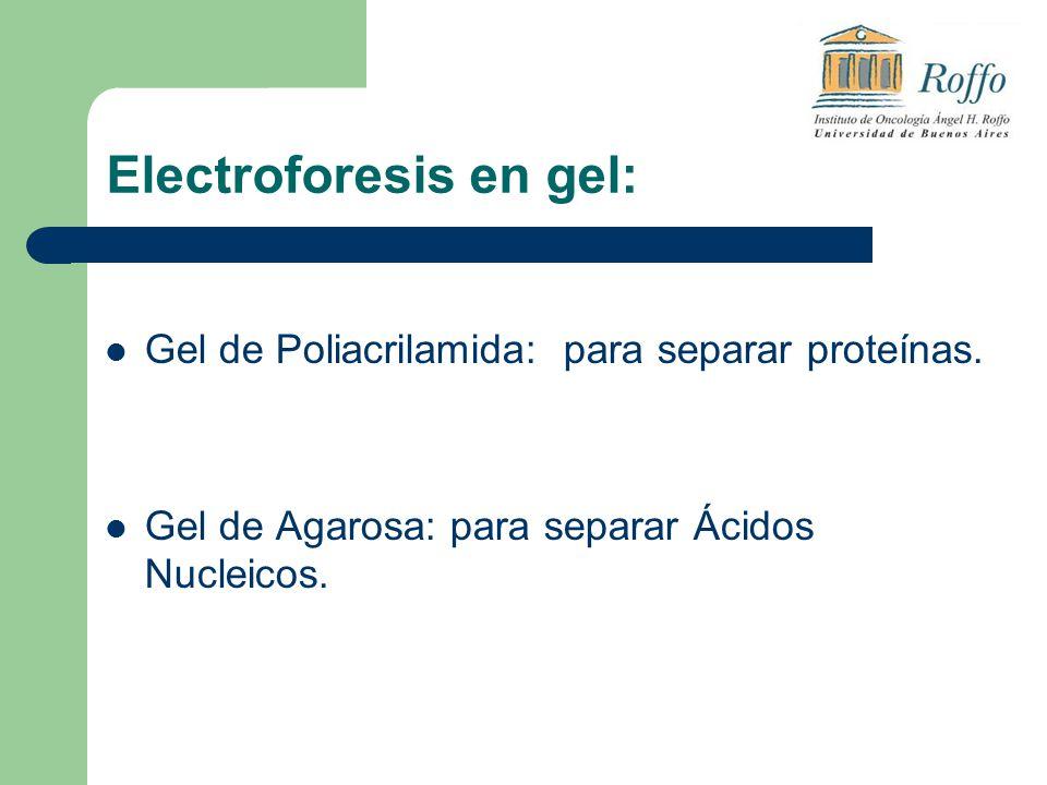 Electroforesis en gel: