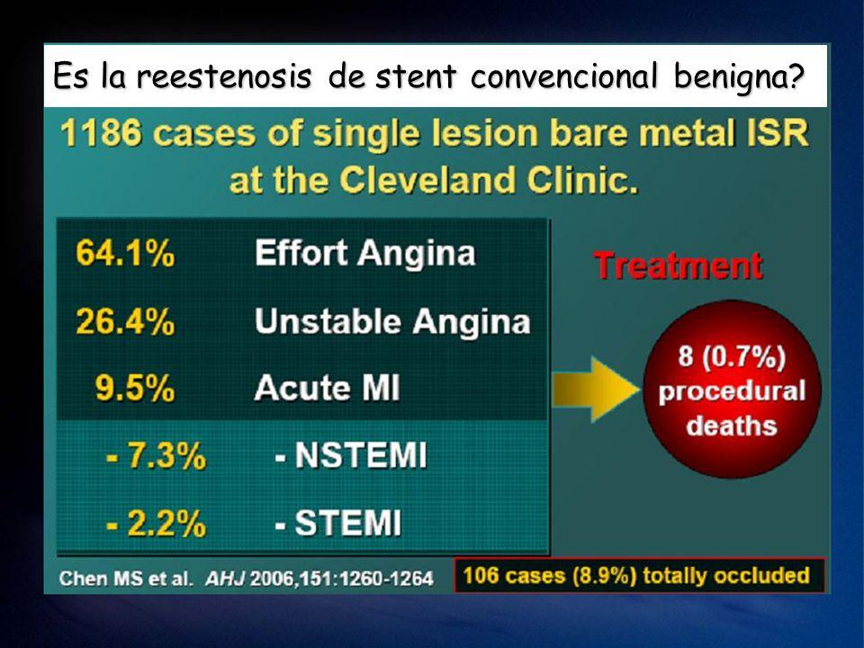 Es la reestenosis de stent convencional benigna
