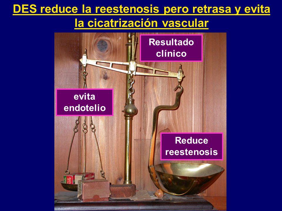 DES reduce la reestenosis pero retrasa y evita la cicatrización vascular