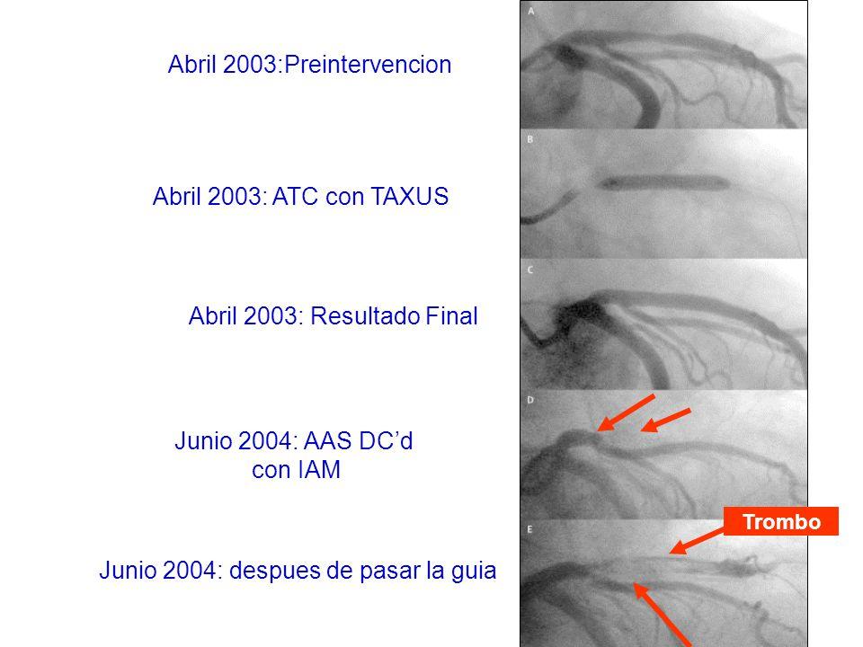 Junio 2004: despues de pasar la guia