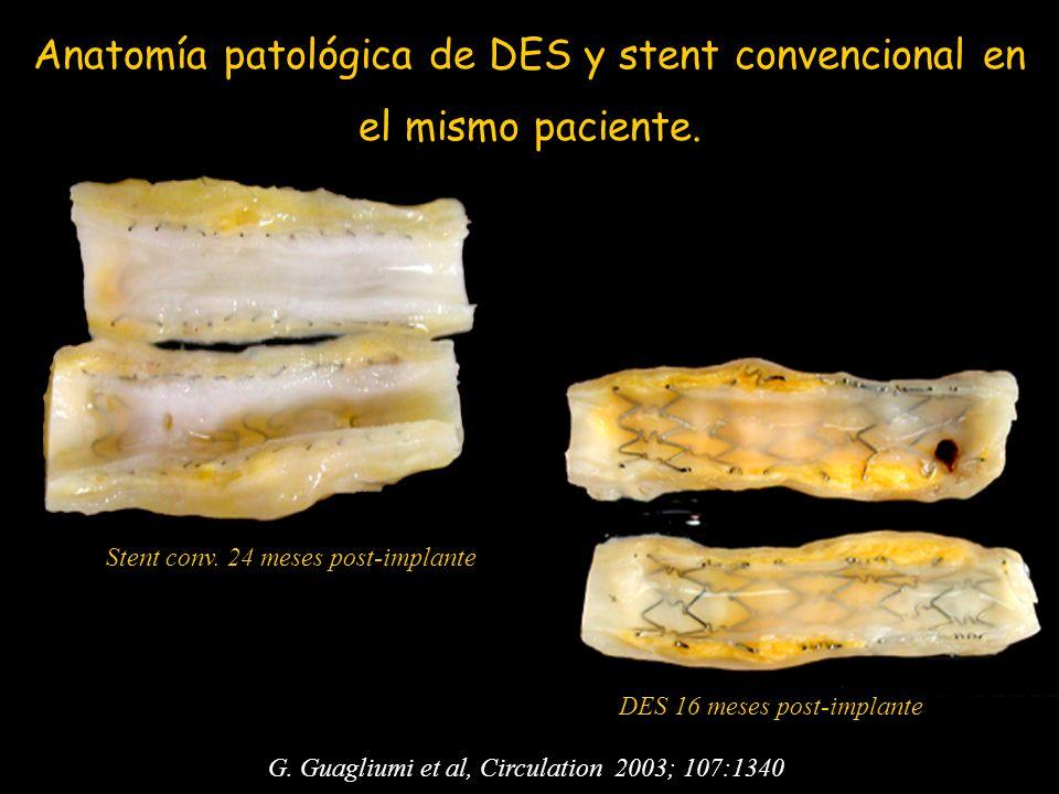 Anatomía patológica de DES y stent convencional en el mismo paciente.