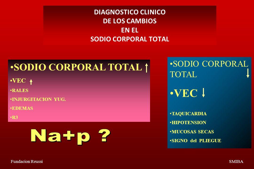 DIAGNOSTICO CLINICO DE LOS CAMBIOS EN EL SODIO CORPORAL TOTAL