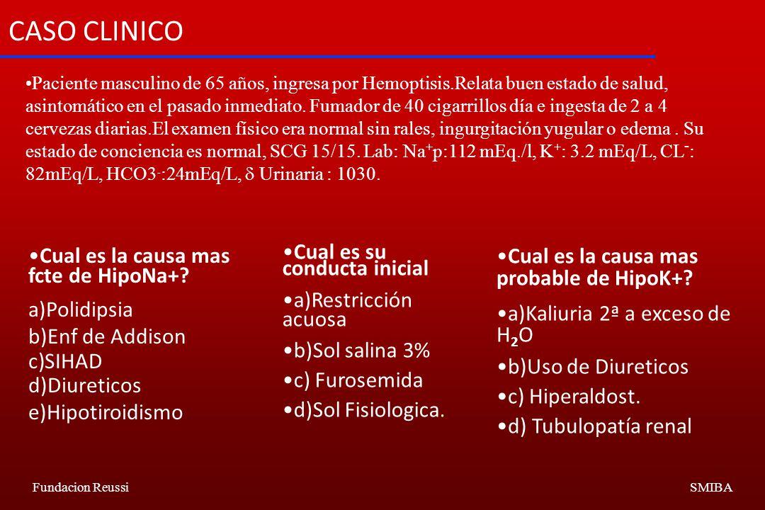 CASO CLINICO Cual es la causa mas fcte de HipoNa+ Polidipsia