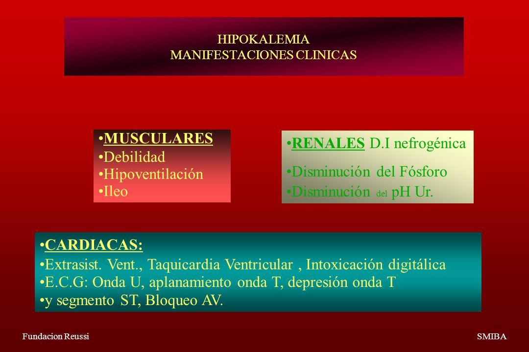 HIPOKALEMIA MANIFESTACIONES CLINICAS