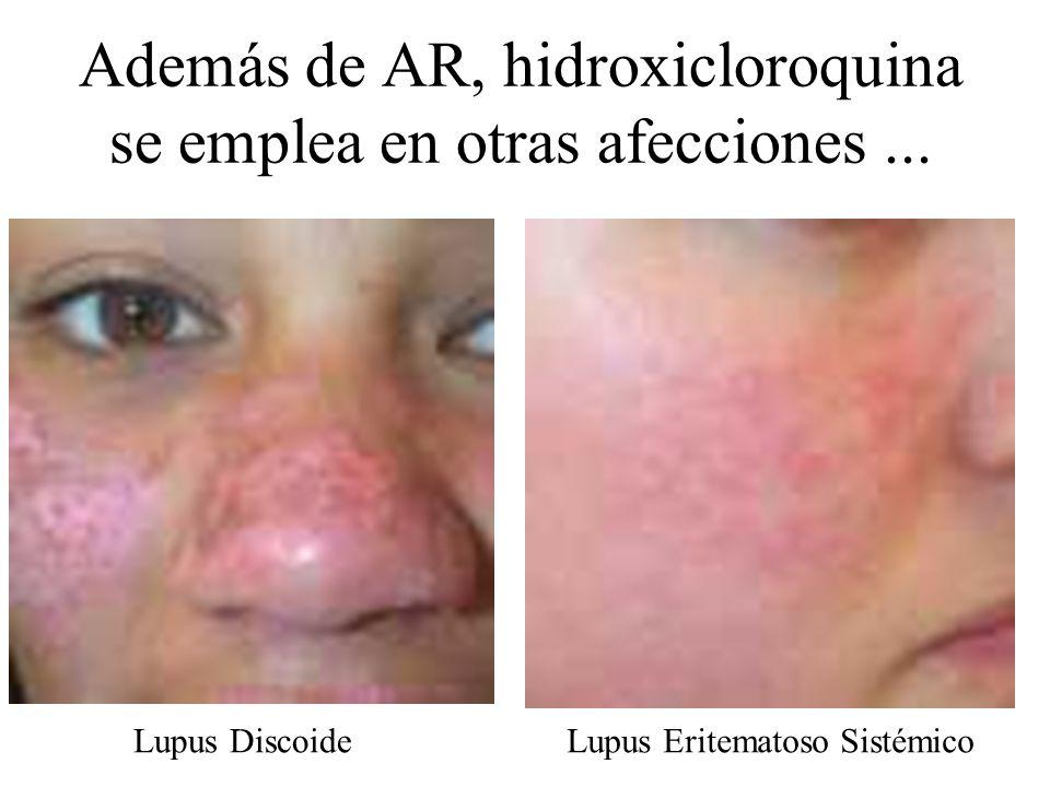 Además de AR, hidroxicloroquina se emplea en otras afecciones ...