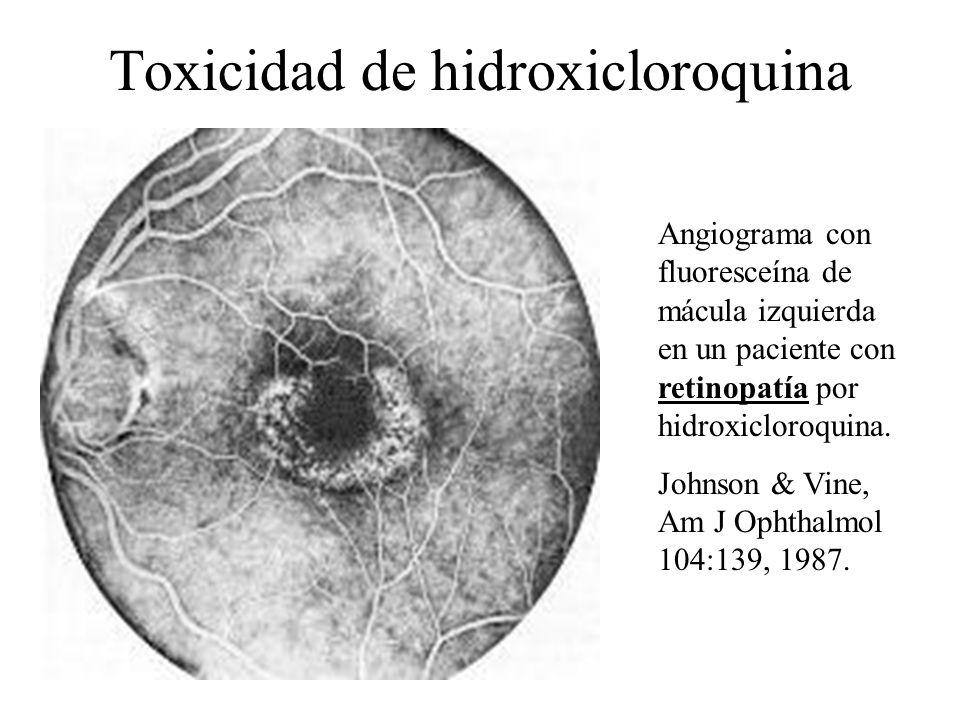 Toxicidad de hidroxicloroquina