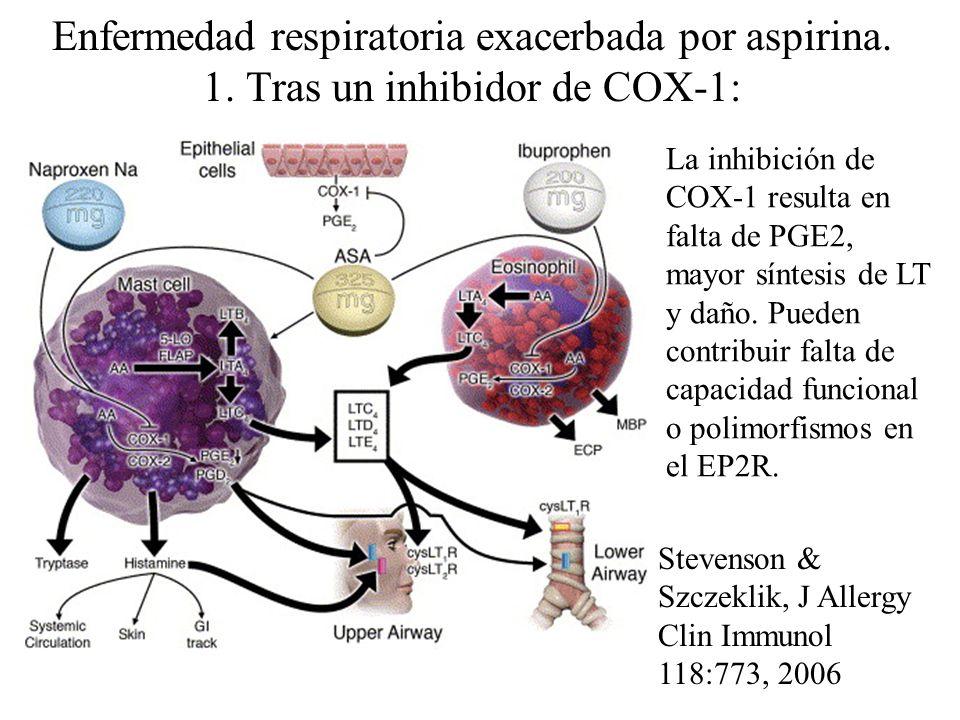 Enfermedad respiratoria exacerbada por aspirina. 1