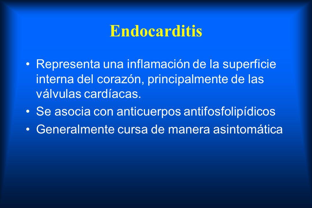 Endocarditis Representa una inflamación de la superficie interna del corazón, principalmente de las válvulas cardíacas.