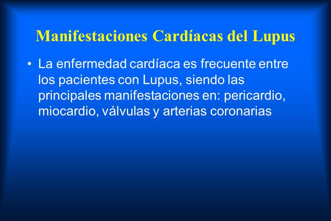Manifestaciones Cardíacas del Lupus