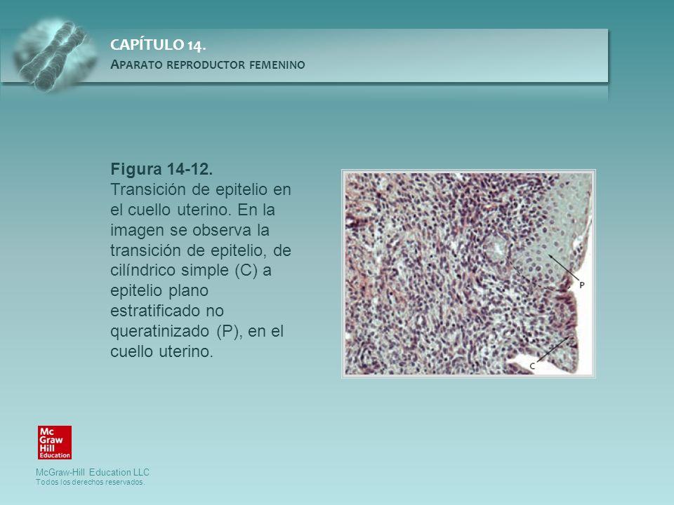 Figura 14-12. Transición de epitelio en el cuello uterino. En la