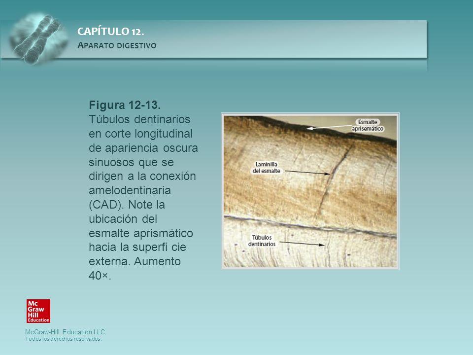Figura 12-13. Túbulos dentinarios en corte longitudinal de apariencia oscura sinuosos que se dirigen a la conexión amelodentinaria