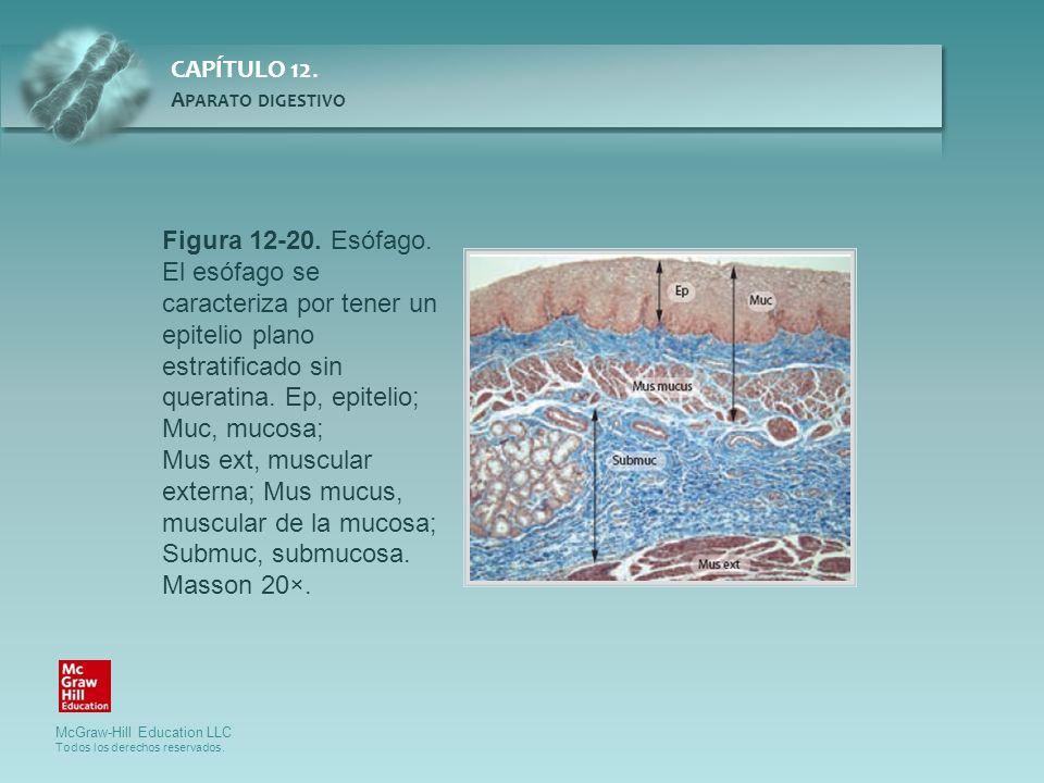 Figura 12-20. Esófago. El esófago se caracteriza por tener un